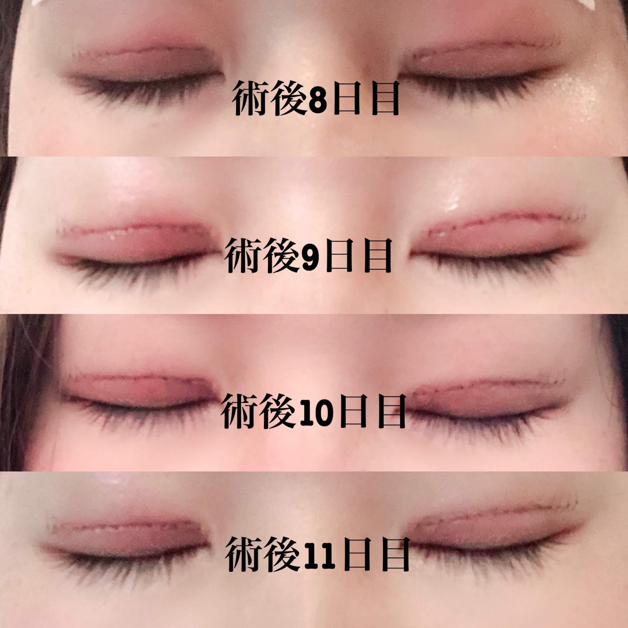 眼瞼下垂 手術 経過3